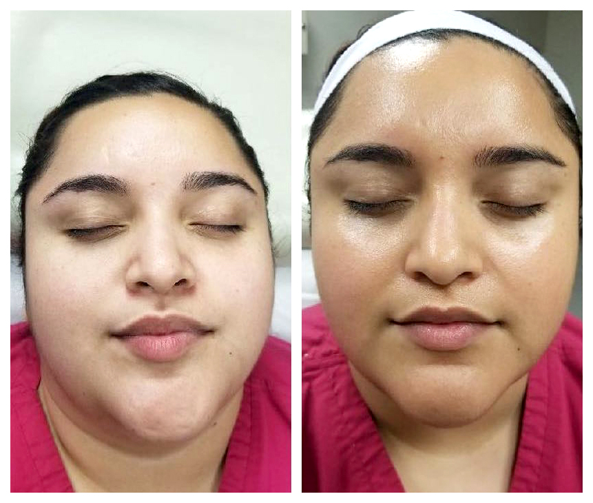 Before-and-after-O2-facial