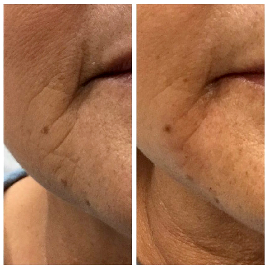 Juvaderm Before and after filler