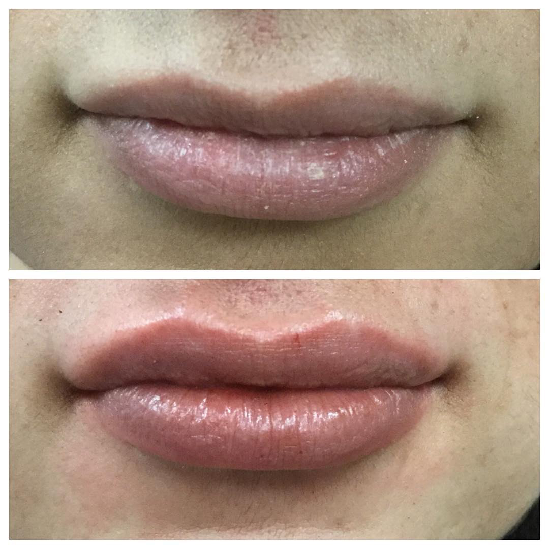 Juvaderm-Before-and-after-lip-filler-2