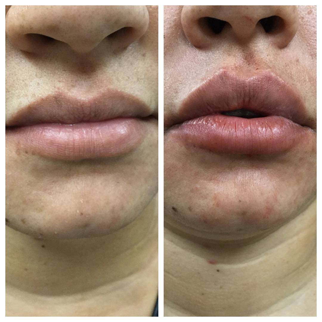Juvaderm-Before-and-after-lip-filler