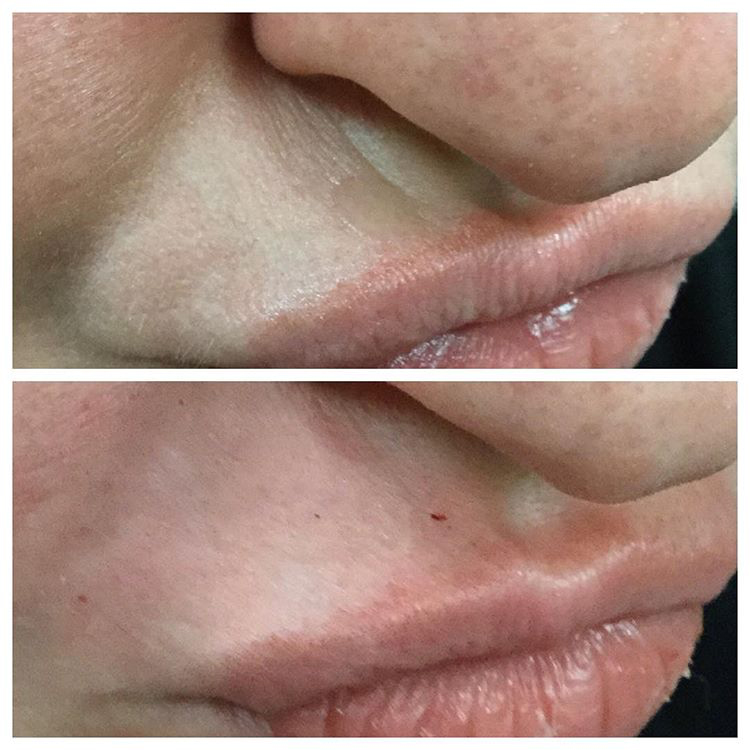 Juvaderm-Ultra-Plus-Before-and-after-Botox-and-Filler-
