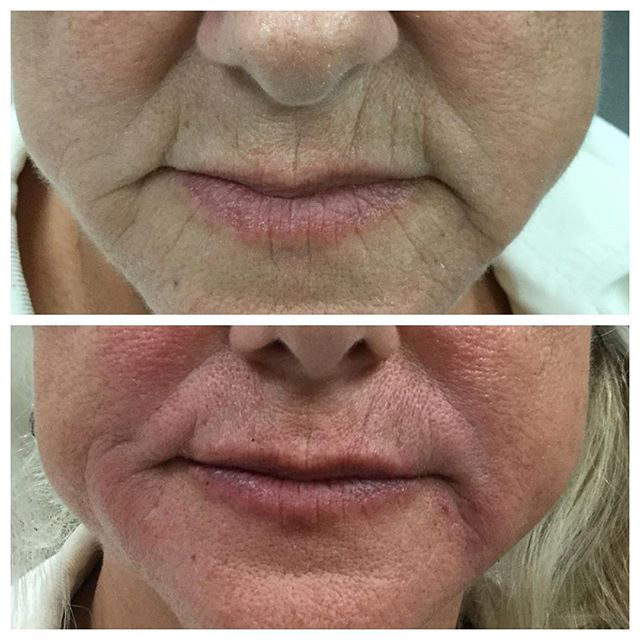 Juvaderm-Ultra-Plus-Volbella-Before-and-after-facial-and-lip-filler