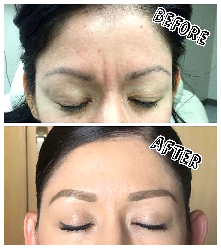 before-and-after-Botox,-filler,-and-chemical-peel